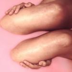 膝の痛み、その原因と治し方